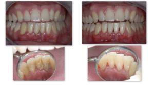 lissone-igiene-orale